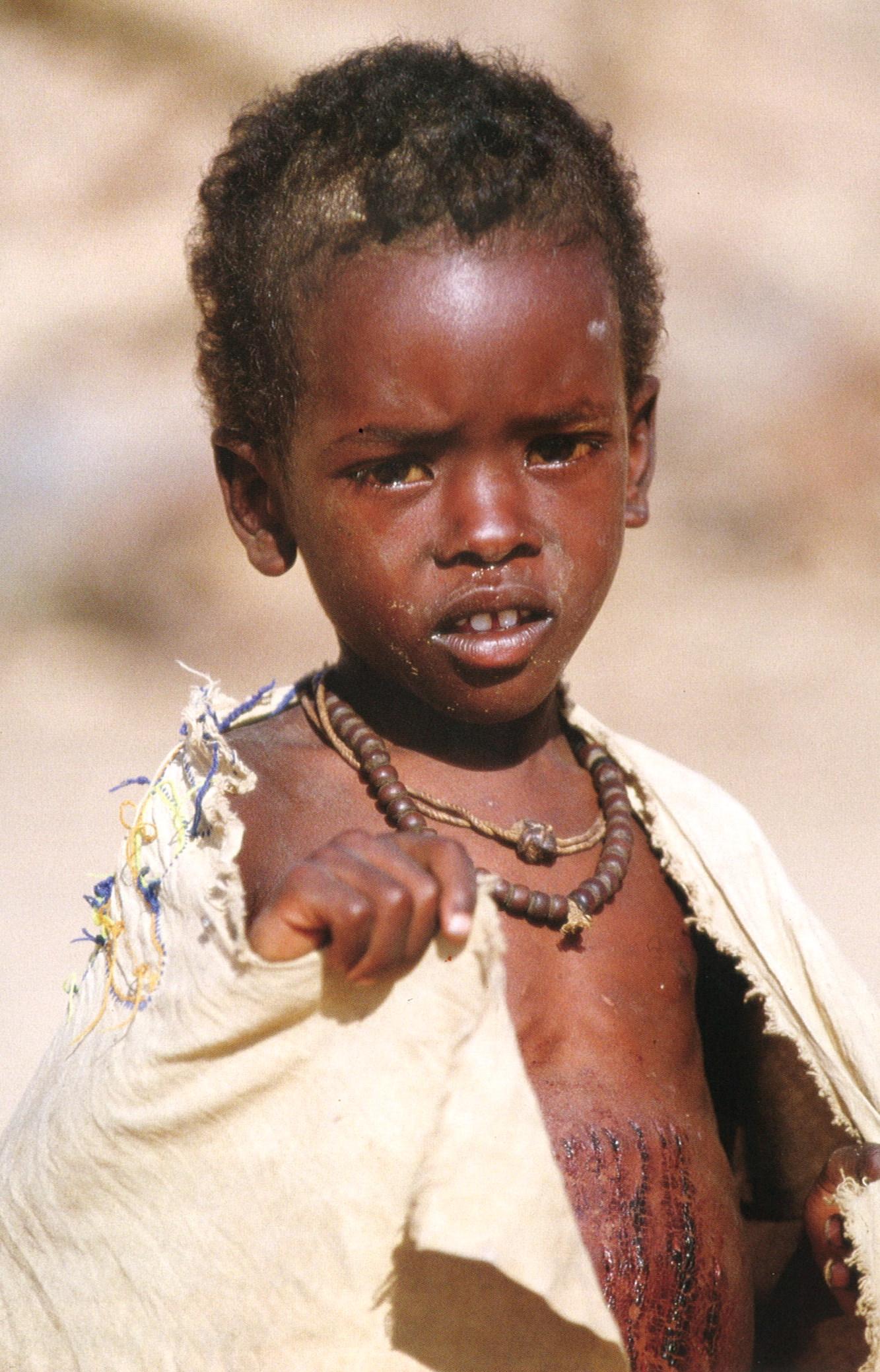 "PHOTO CREDIT:  Paul Grabhorn - ""seeking light: portraits of humanitarian action in war"""