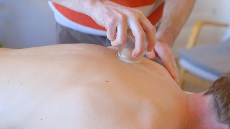 'Fire cupping' being used to relax the large muscle groups in the 'Bladder channel' (from the Chinese medicine perspective).