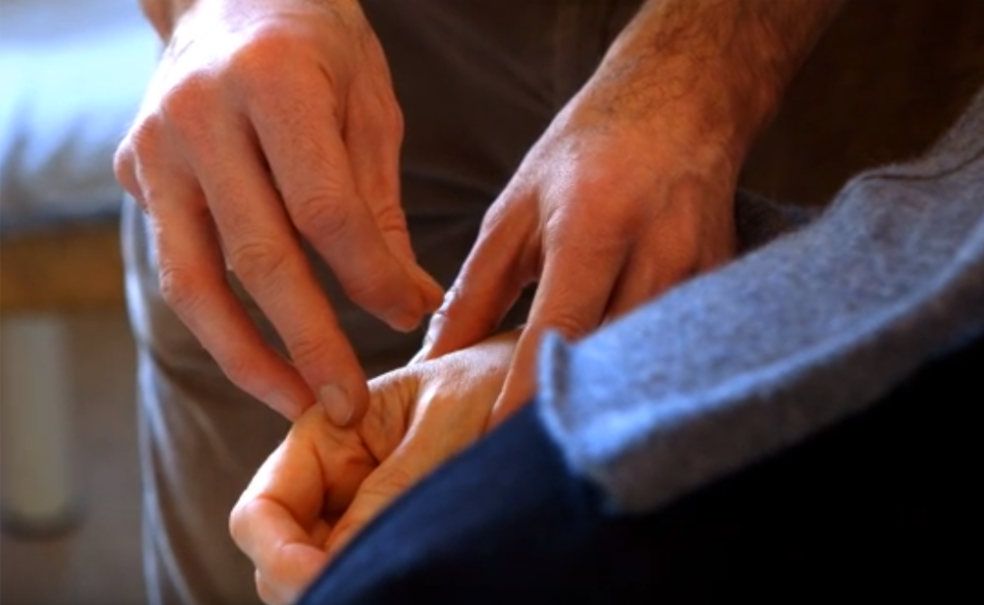 Acupuncture treatment for heel pain doesn't necessarily involve needling the heel!