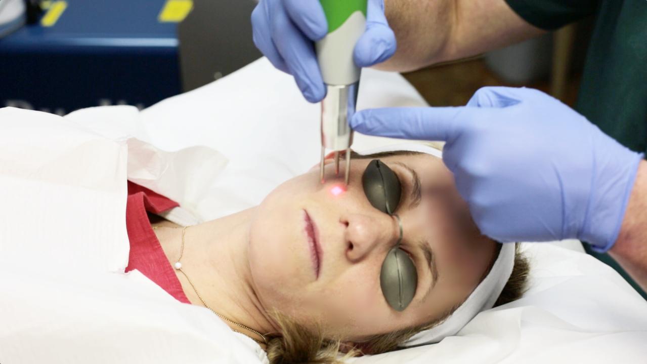 Laser Facial Peel