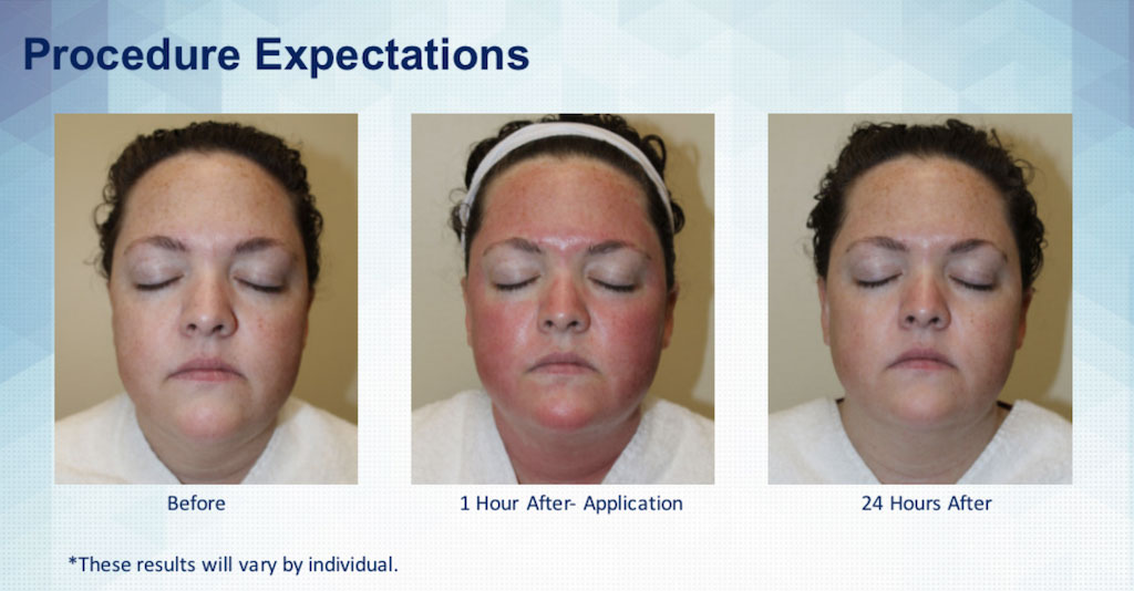 skinpen-procedure-expecations.jpg