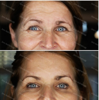 - Static lines on the forehead have been softened and by treating the brow too, the tail of the brow has lifted to slightly open the eyes up.