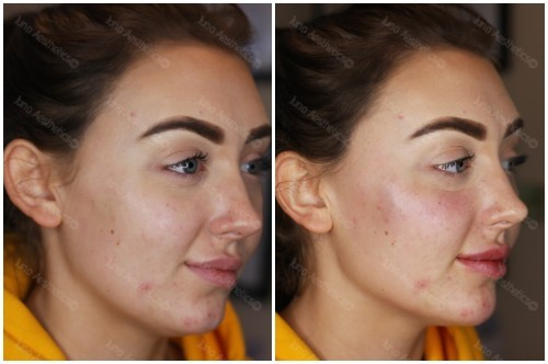 Young female - jaw and chin definition