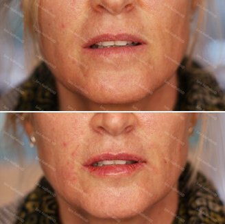- HYDRATEThe over 40s lip can enrmously benefit from dermal filler to soften the lip body, hydrate and improve shape. Dermal filler can also be used around the mouth to improve smokers lines, support the skin in the nasolabial and melolabial region for a light airbrush.