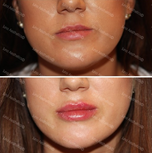 - FULL VOLUMEWith repeated visits, lip enhancement treatments will shape the shape, proportion and balance of lips to achieve a ful volume look.