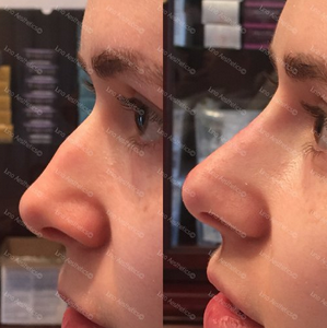 - REDUCEThe nose looks smaller after dermal filler has been used to lift and smooth the profile.