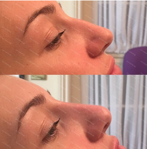 - SMOOTHDermal filler is skillfully layered to smooth the profile so the dorsal hump is less prominent.