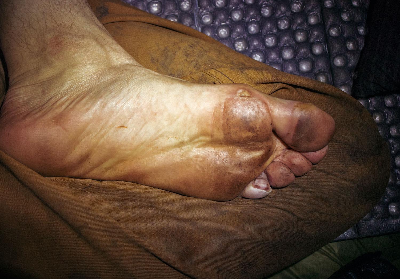 blisters-on-foot.jpg