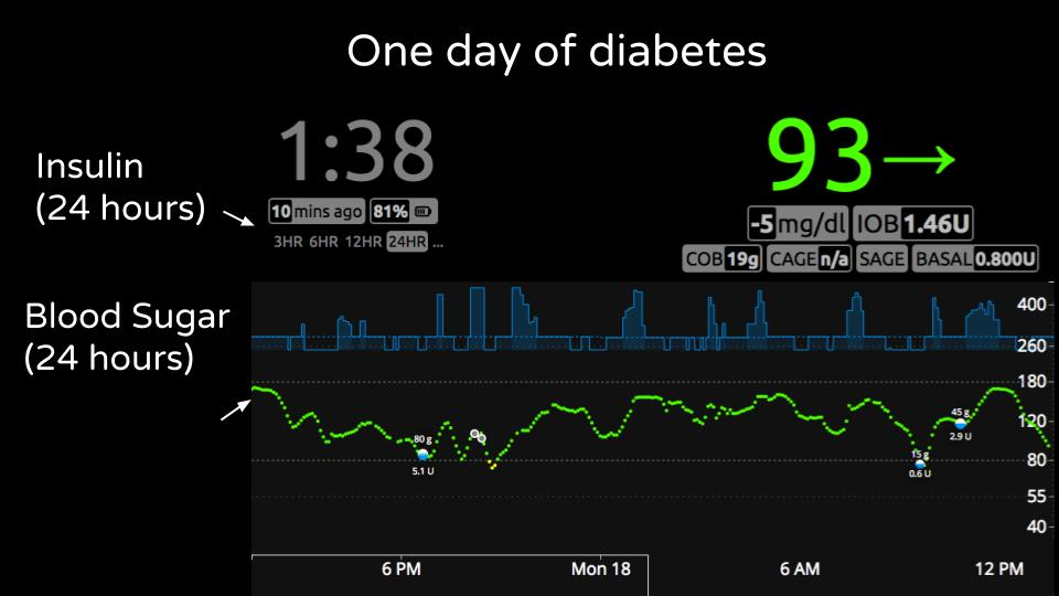 Traditional View of Diabetes Data