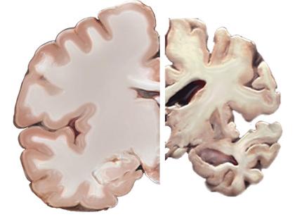 Alzheimer reduz a massa cerebral e aumenta o risco de demência