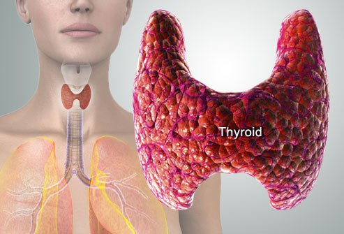 thyroid-symptoms-and-solutions-s2.jpg