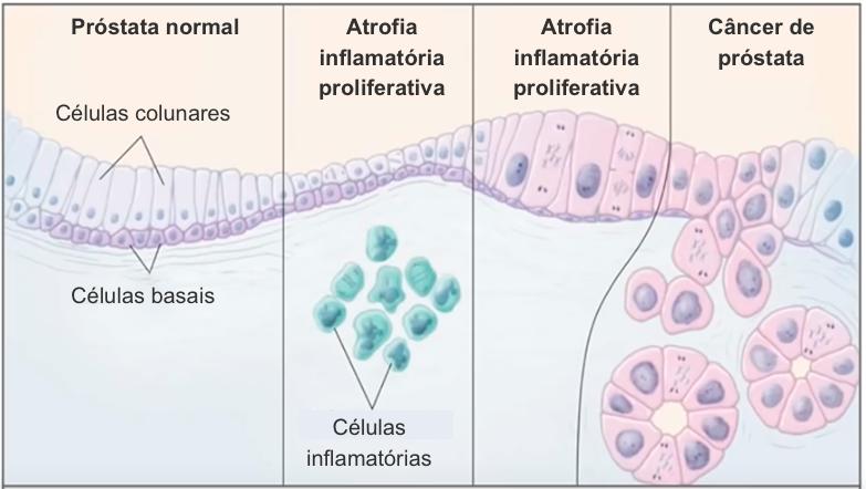 Câncer de próstata.png