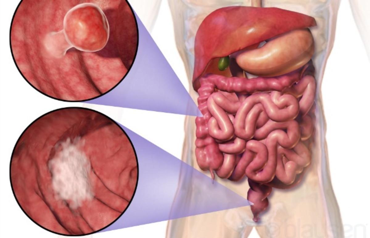 colon-cancerjpg.jpg