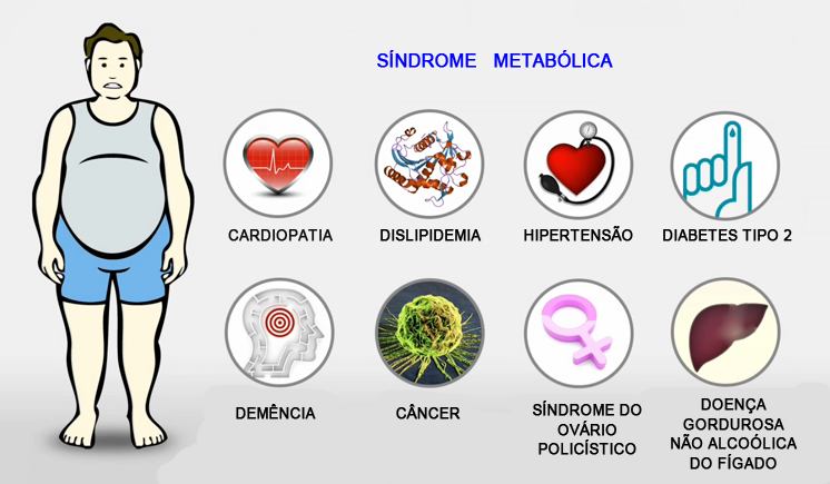 sindrome-metabolica.png