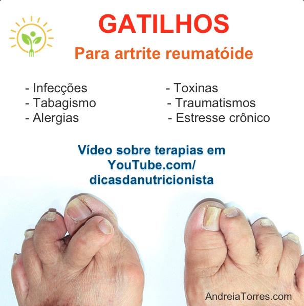 Gatilhos artrite.jpg