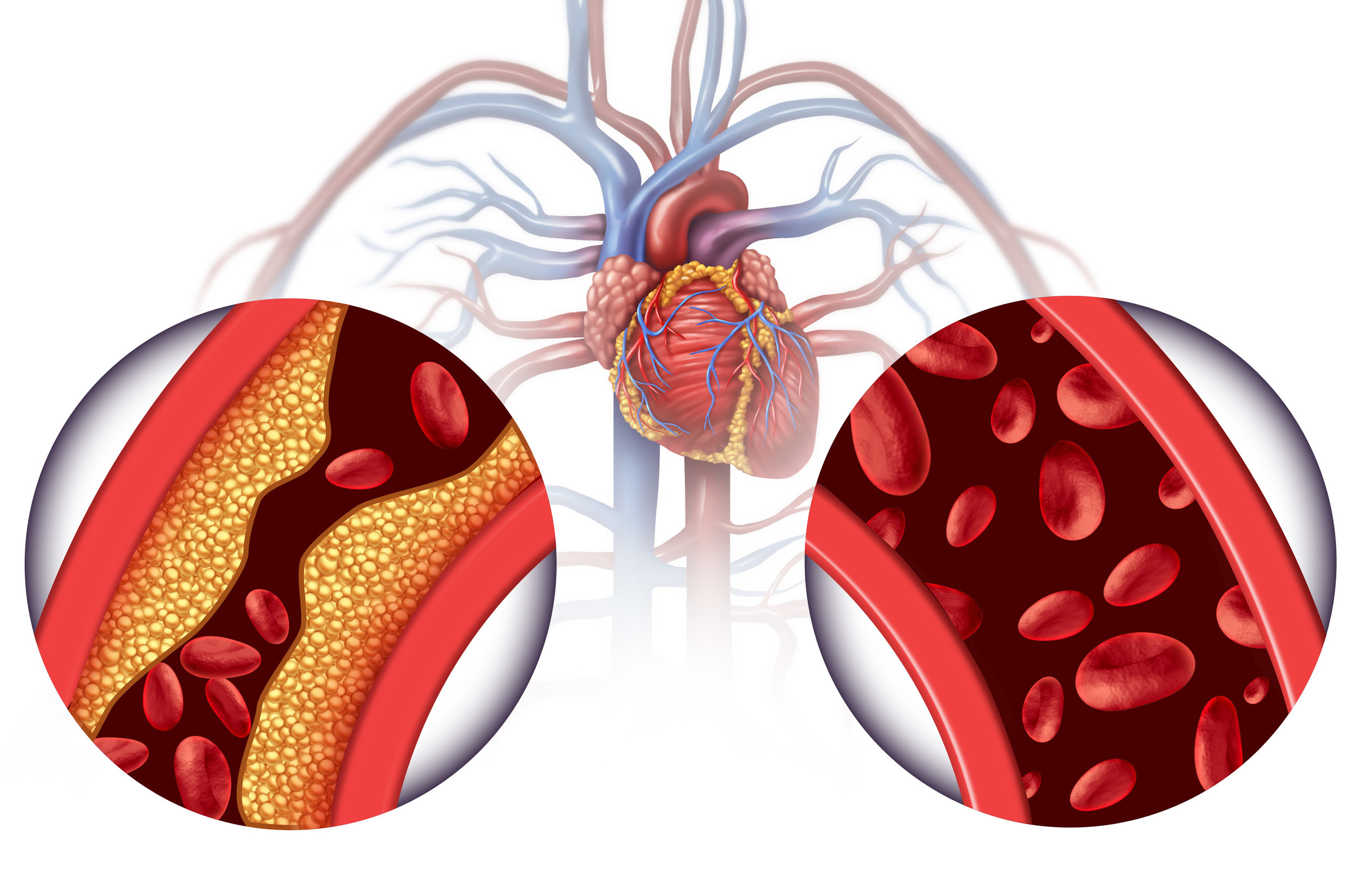 Did you know?: improved circulation following chelation therapy has been measured through ARTERIAL studies conducted on patients at the NHIC .