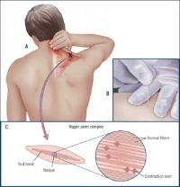 neckpaindryneedletherapy
