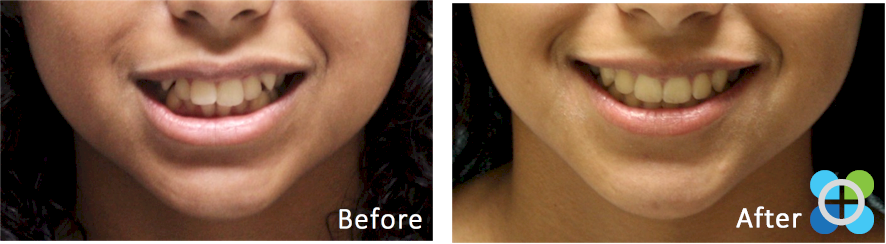 2-orthodontique-before-after-braces.png