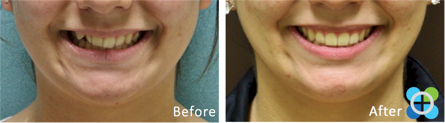 1-orthodontique-before-after-braces.png