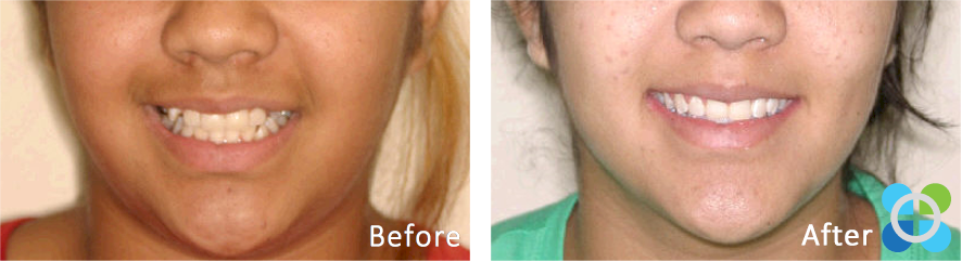3-orthodontique-before-after-braces.png