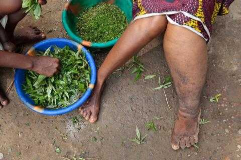 Lymphatic-Filariasis-LF-commonly-known-as-elephantiasis.jpeg