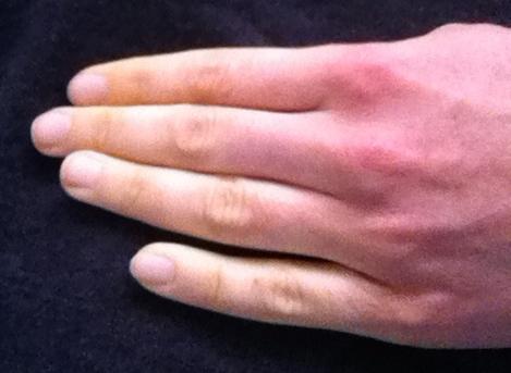Raynaud's Phenomenon in the fingers. @greencolander via Flickr