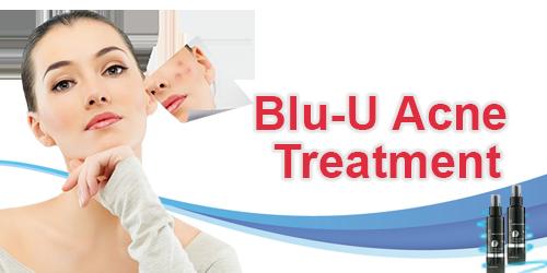 Blu-U Acne Treatment Banner.png