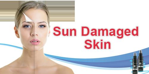 Sun Damaged Skin Banner.png