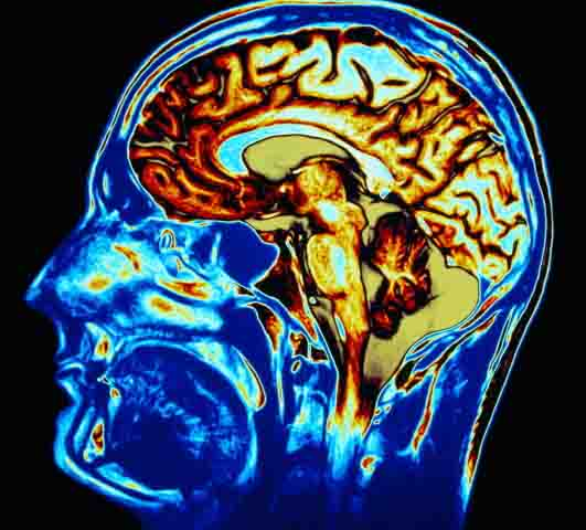 Head injury from a Florida bicycle accident, visible on PET scan