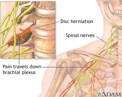 Neck pain is a common result of a Florida bicycle accidents. Neck pain can originate from a herniated disc, like the disc injury shown in the diagram above.