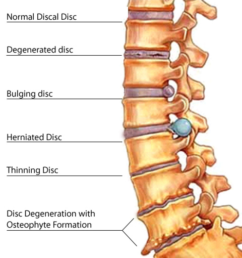 This diagram displays a variety of disc injuries stemming from a Florida bike crash.Notice the difference between a herniated disc injury and a bulging disc injury. The size of the bulbous disc tissue can determine how much pain a person experiences from their disc abnormality.