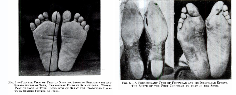 CONCLUSIONS DRAWN FROM A COMPARATIVE STUDY OF THE FEET OF BAREFOOTED AND SHOE-WEARING PEOPLES  / PHIL. HOFFMANN  J Bone Joint Surg Am.  1905;s2-3:105-136.