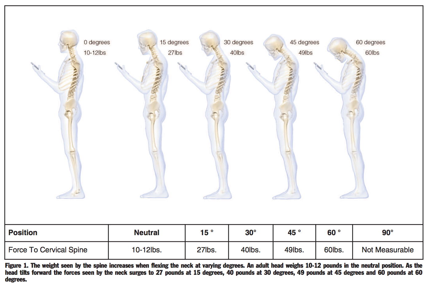 Assessment of Stresses in the Cervical Spine Caused by Posture and Position of the Head KENNETH K. HANSRAJ