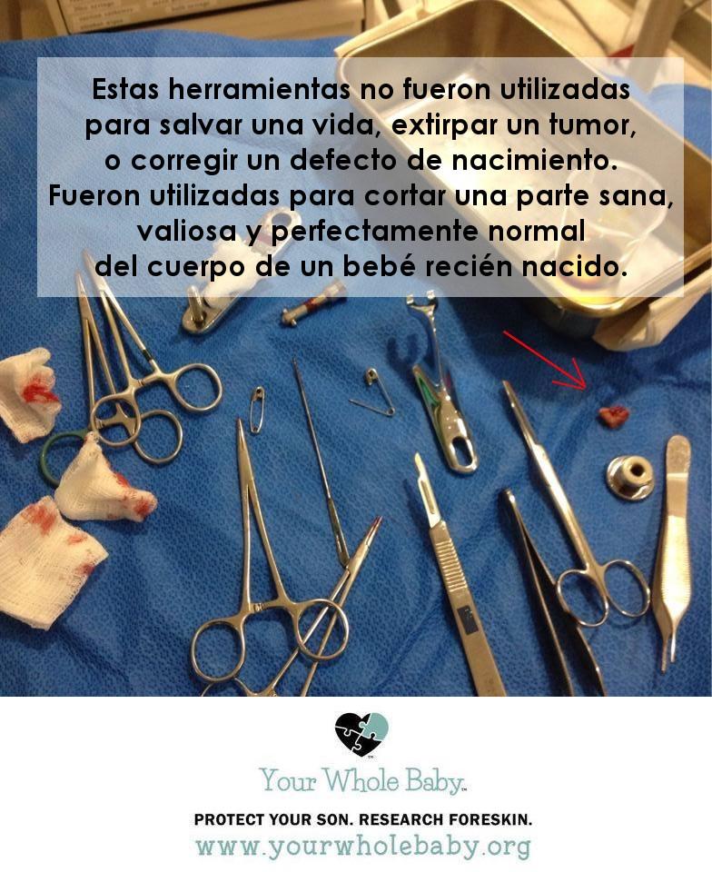 YWB Surgery tools 3 spanish.jpg