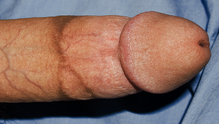 circumcision_scar.jpg