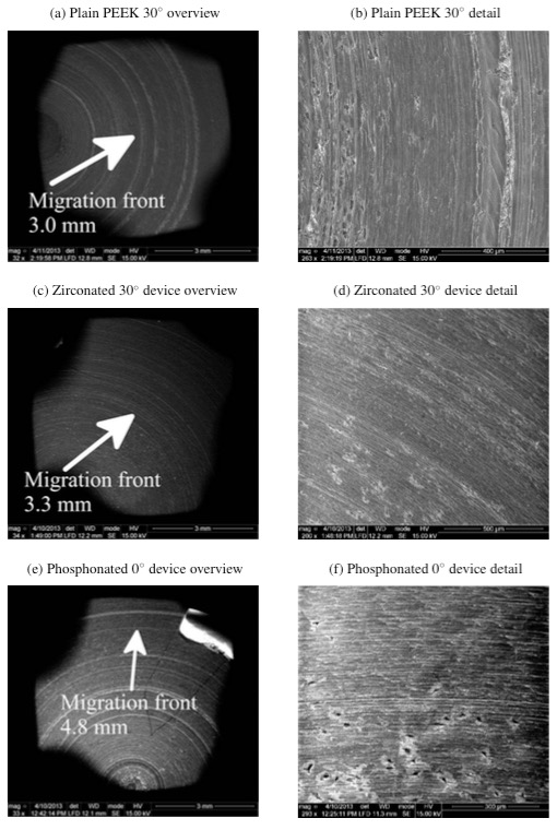 Figure 13: Migration fronts for devices that showed evidence of cell adhesion. This result is interpreted with care due to inaccuracies in the plating process.