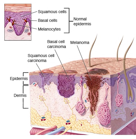 - Skin cancer begins in the cells that make up the outer layer (epidermis) of your skin. One type of skin cancer called basal cell carcinoma starts in the basal cells, which make skin cells that continuously push older cells toward the surface. As new cells move upward, they become flattened squamous cells, where a skin cancer called squamous cell carcinoma can occur. Melanoma, another type of skin cancer, arises in the pigment cells (melanocytes).