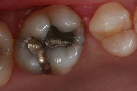 Before replacement of amalgam (mercury) filling with composite bonding