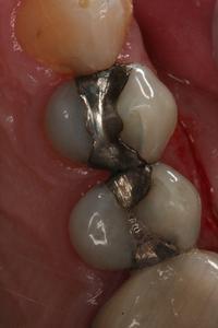 Before replacement of amalgam (mercury) filling with composite bonding.