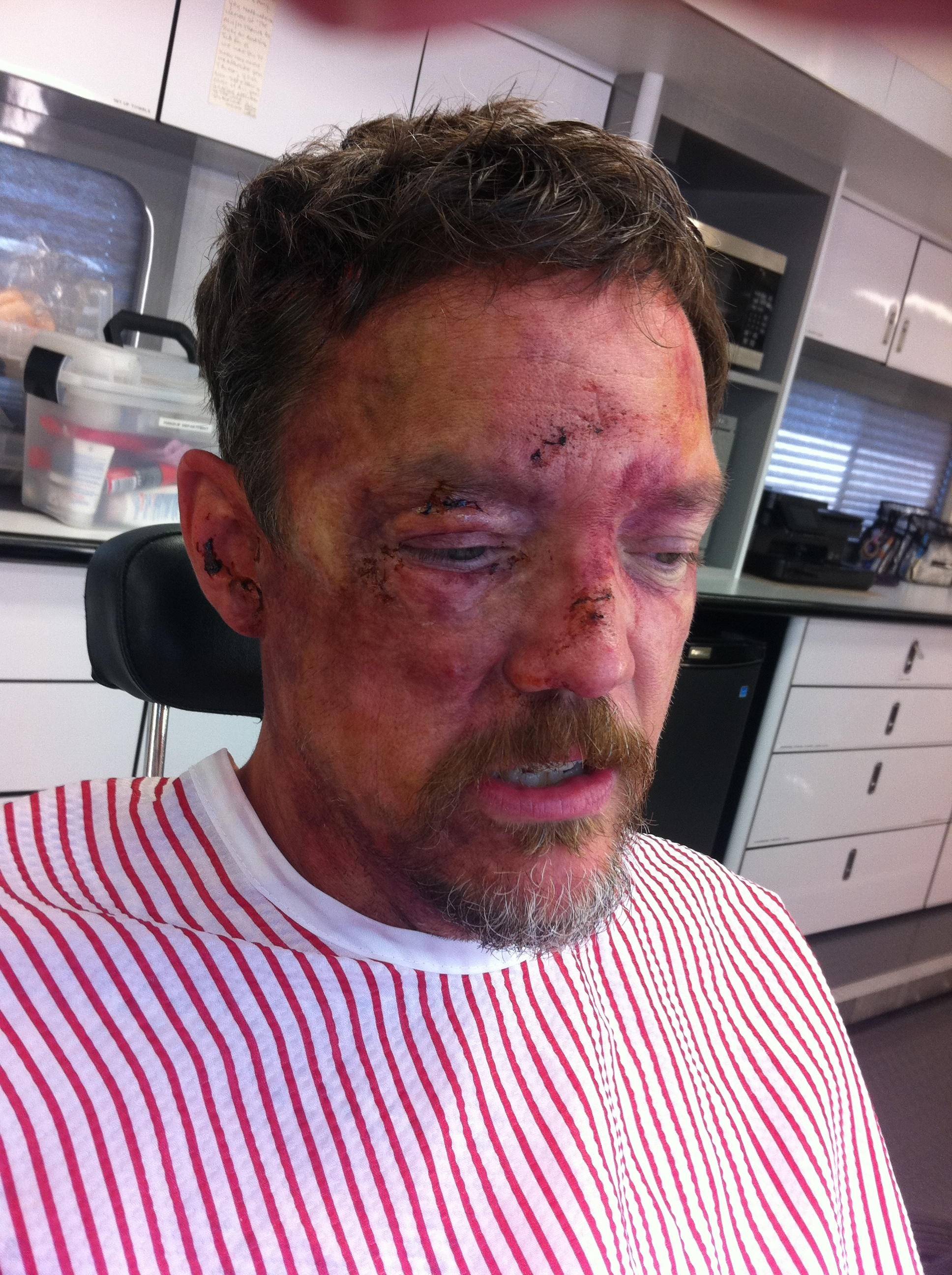 "This is Matthew Lillard (Shaggy in the Scooby Doo movies) after he fell of a bridge in the TV show ""The Bridge"". FX Channel"