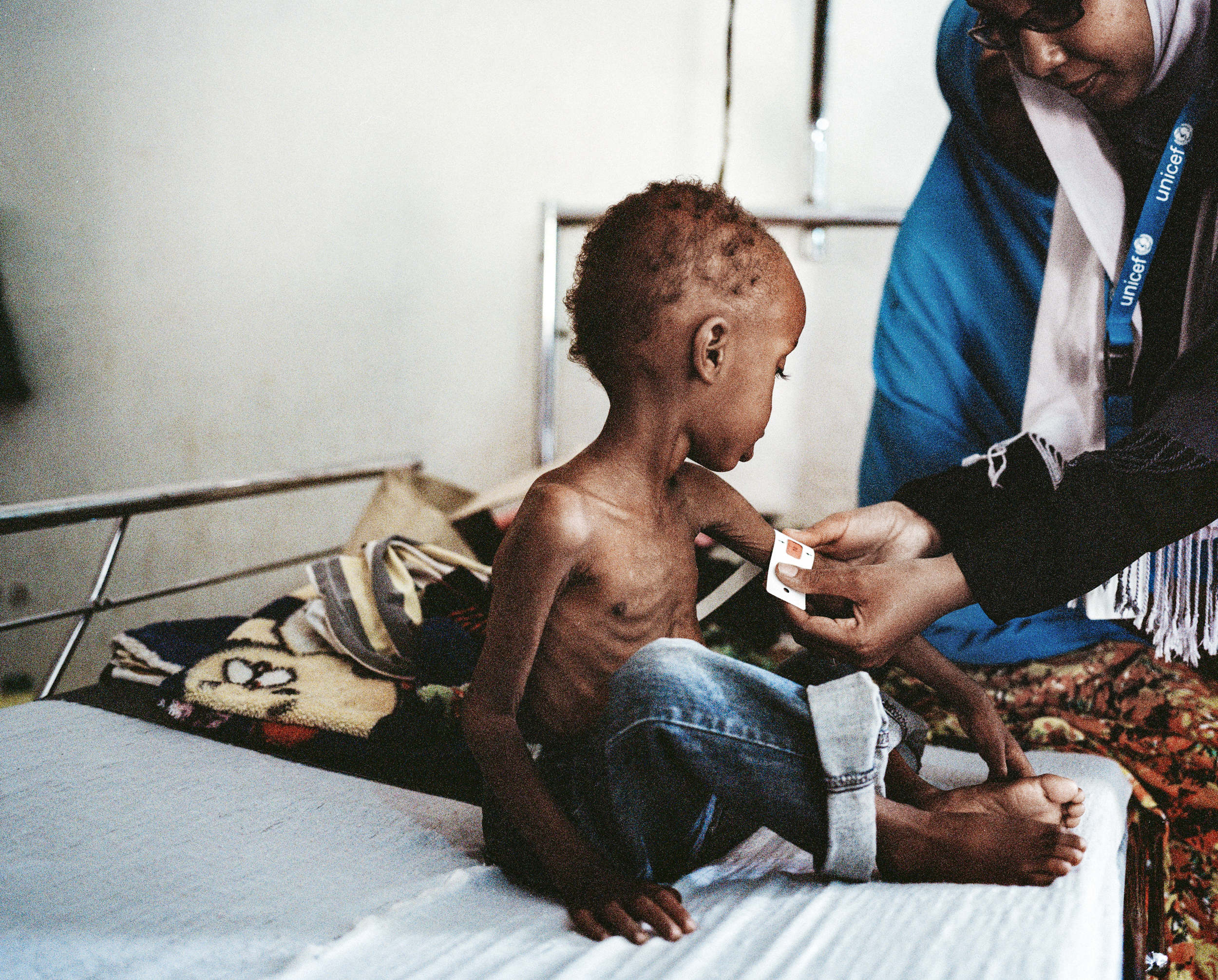 UNICEF malnutrition and dehydration treatment center. Somalia, 2013.