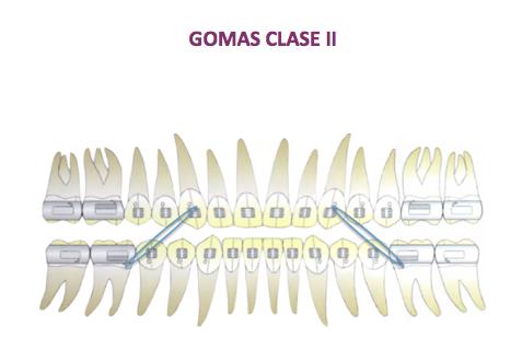 Elasticos Intermaxilares Ortodoncia Ojanguren