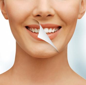 Cosmetic Dentist San diego