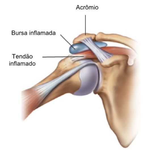 Bursites e Tendinites no Ombro — Dr. Leonardo Cavinatto - Médico ...