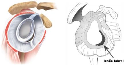 Esquema de lesão do labrum e capsula anterior do ombro decorrente episódio de luxação