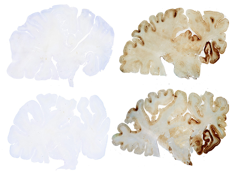 The brain on the right has been diagnosed with CTE.