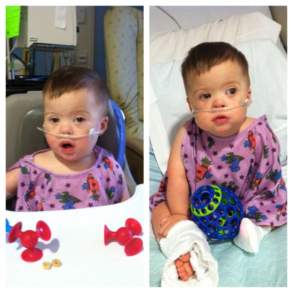 This cutie took 3 years to learn how to swallow without aspirating. He needed thickener in each drink and now we never take for granted a simple glass of water. Pneumonia and RSV had him in this cute gown for a week.