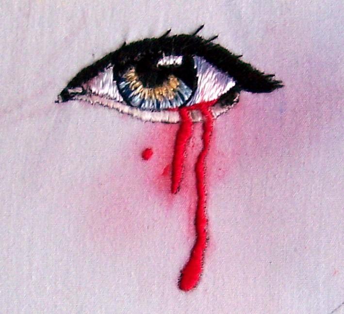 """Bleeding Eye"" by C. Bayraktaroglu"