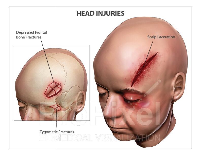 Head Injury_website.jpg