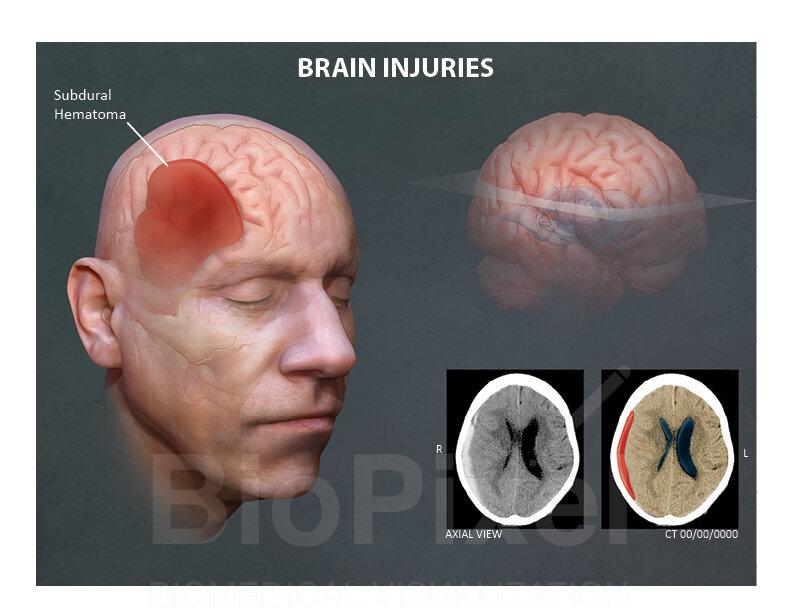 Subdural hematoma.jpg